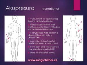 artróza, artritida, dna, revma,, regma, reuma, revmatismus, oteklé, bolavé, klouby, bolesti kloubů